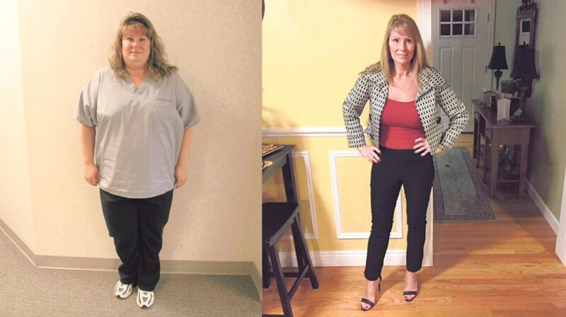 Gastric Weight Loss Surgery